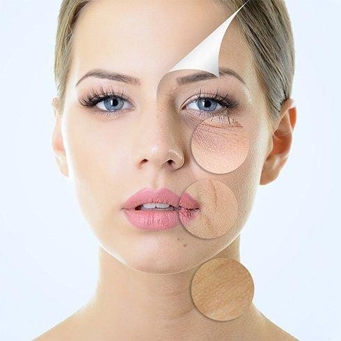 Anti aging skin