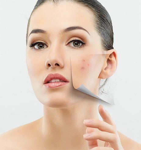 glycerin for face Acne benefits