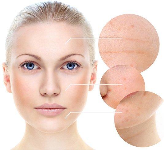 Hazelnuts Benefits For Skin