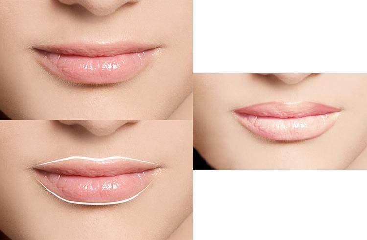 Lip Reduction Tips
