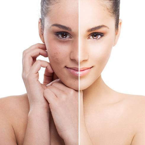 how to fix skin pigmentation on face