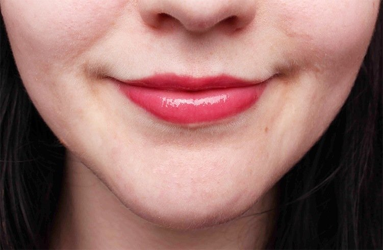 ways to reduce lip size