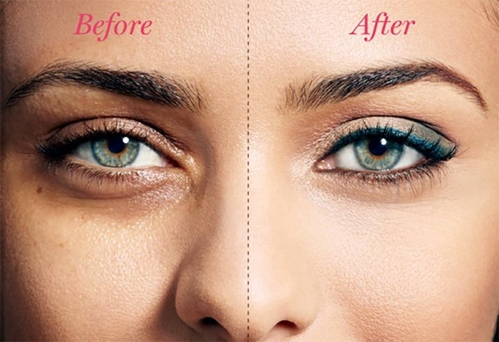 Concealers To Covering Dark Circles
