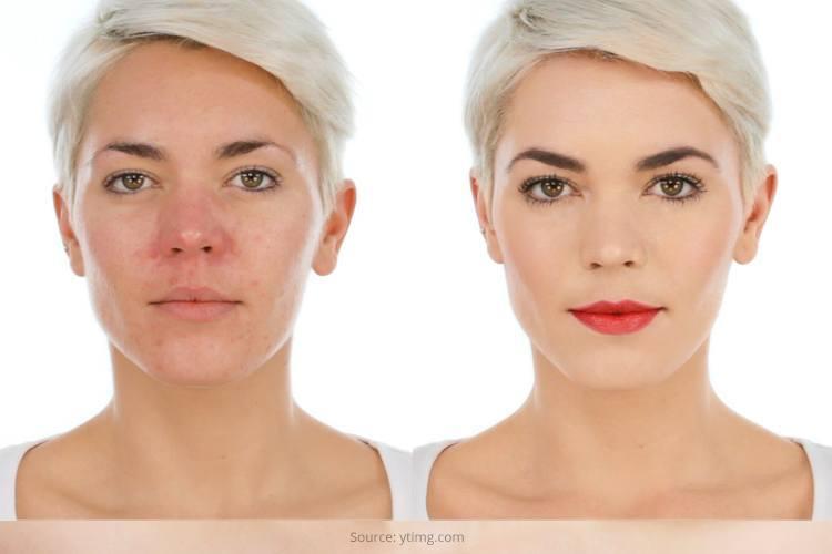 Rosacea Skin Treatment