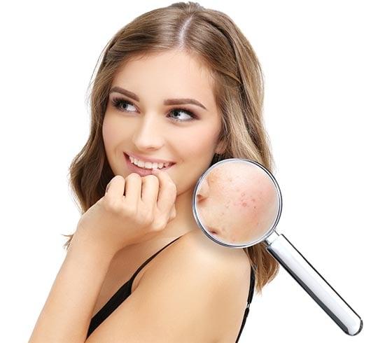 Rosacea Skin Treatment Tips