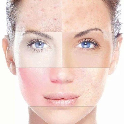 Rosaceas Skincare Routine