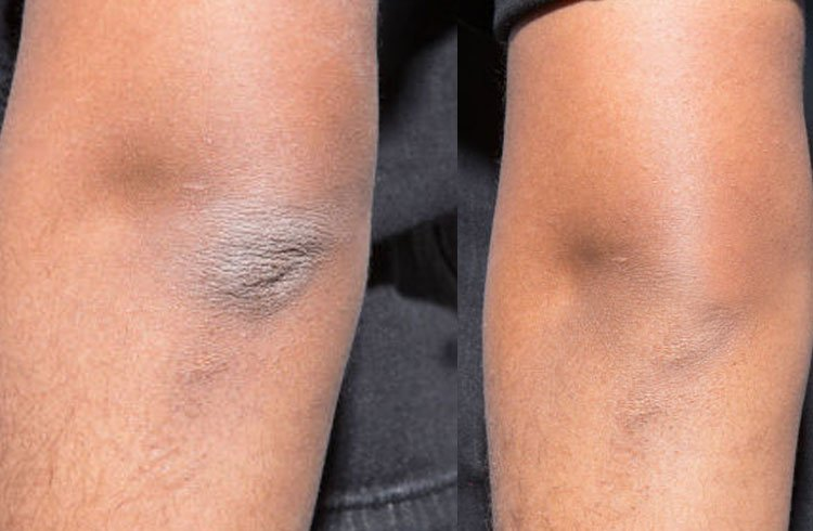 Watch How to get rid of dark black knees video