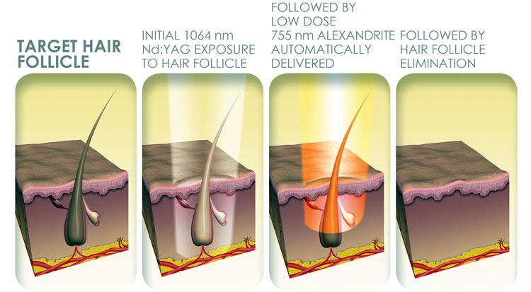 benefits of laser hair removals