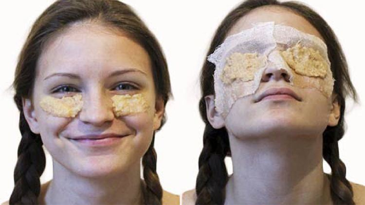 Potato Paste For Dark Circles