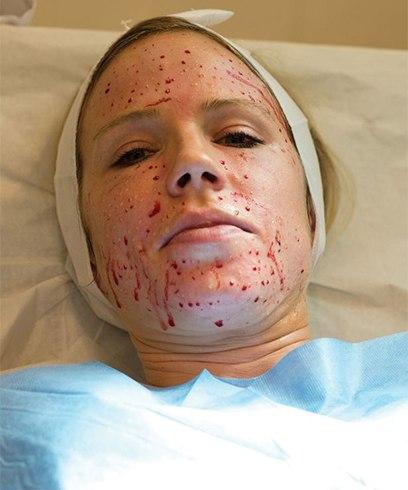 Vampire Facial For Womens