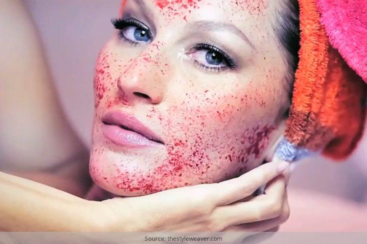 Vampire Facial Benefits