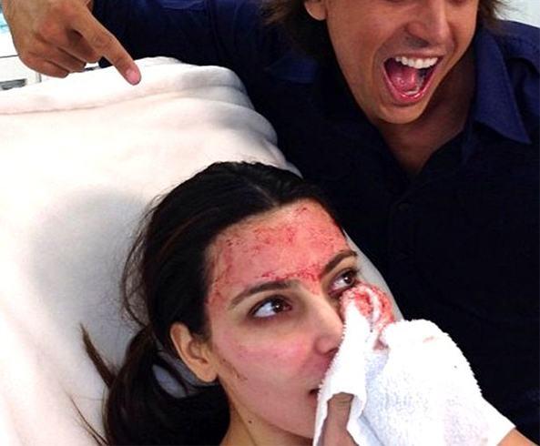Vampire Skin Treatment