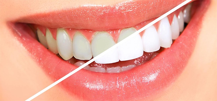 Whiten Teeth Overnight