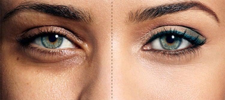 Sunken Eyes Symptom