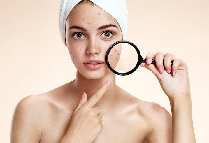 Proactiv Acne Scars