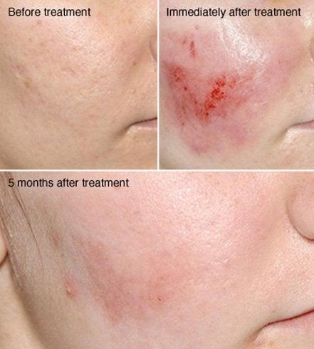 Facial dermabrasion