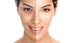 Microdermabrasion For Women