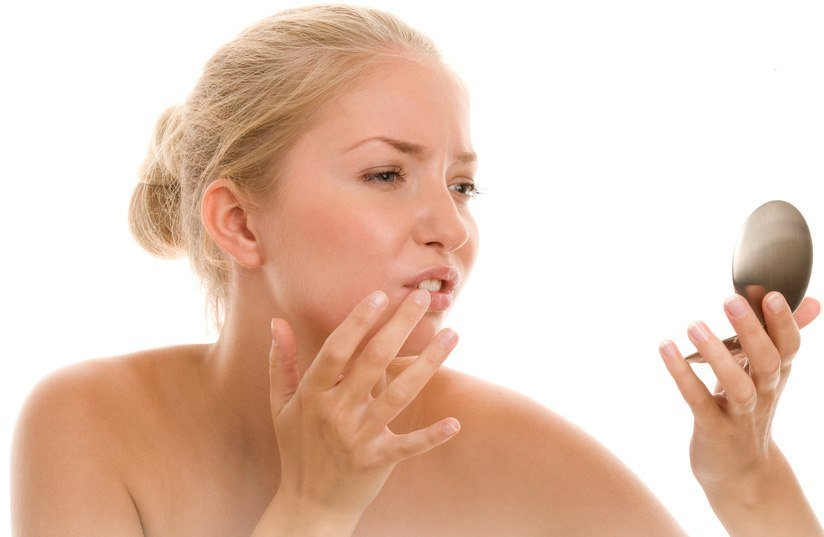What Causes Perioral Dermatitis