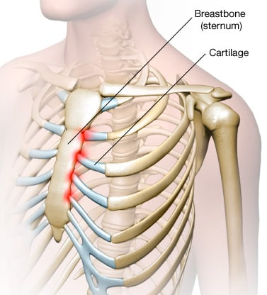 14 Causes Of Pain Under Right Rib Cage