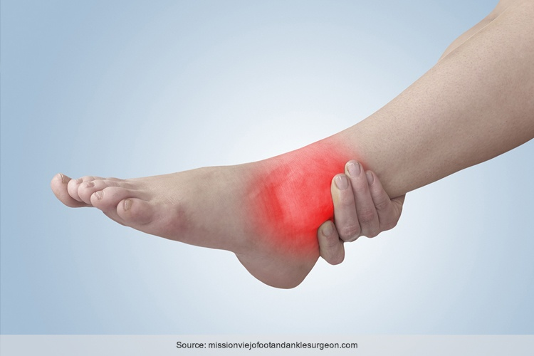 Foot Tendinitis