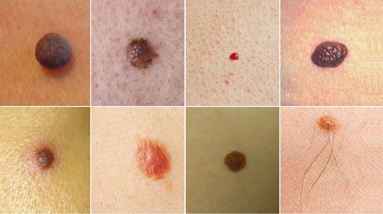 Types Of Moles