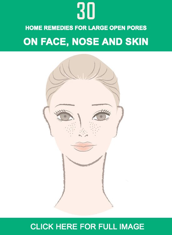 large open pores Infographics