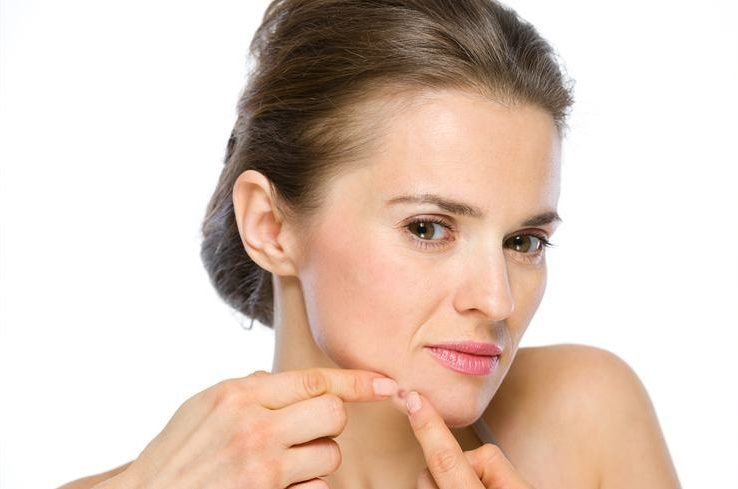 how to stop chin acne