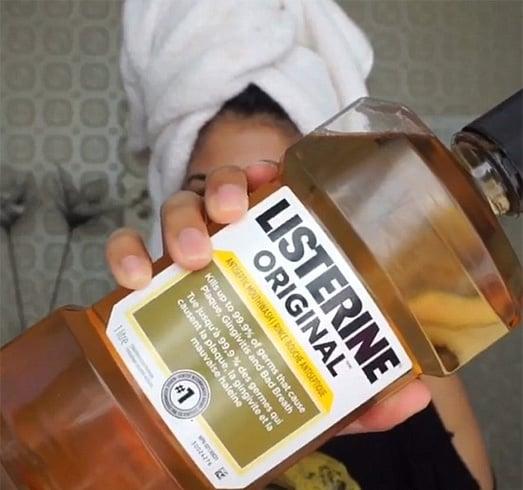 Listerine For Hair Lice