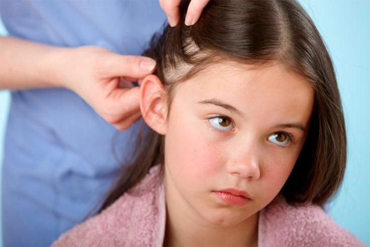 Listerine For Hair Loss