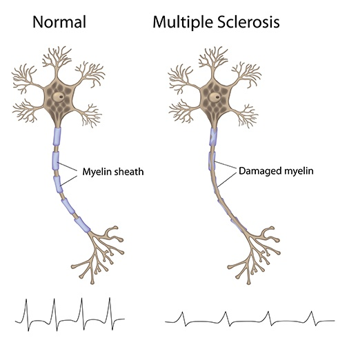 Treat Multiple Sclerosis