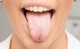 Ways To Get Rid of White Tongue