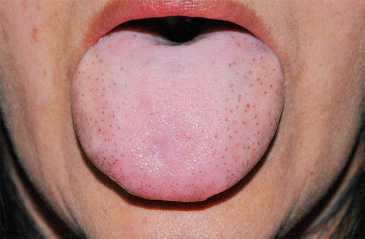 Tongue Fungal Infections