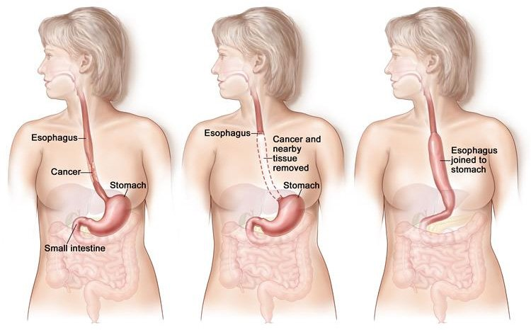 Tumors in the oesophagus