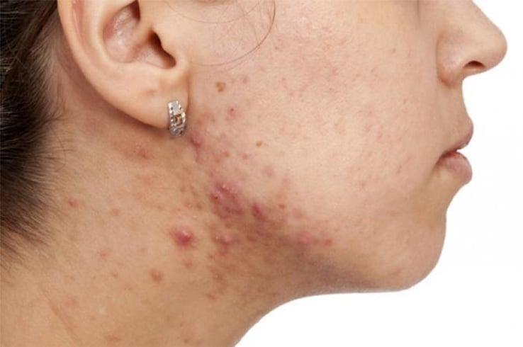 hormonal acne natural treatment