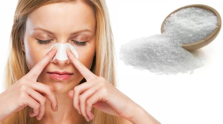 Epsom Salt for Blackheads