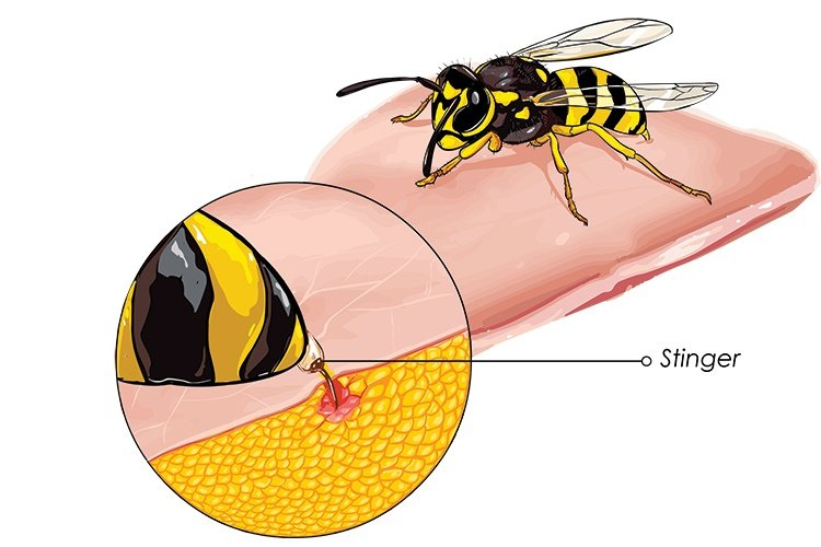Natural Remedies For Bee Stings