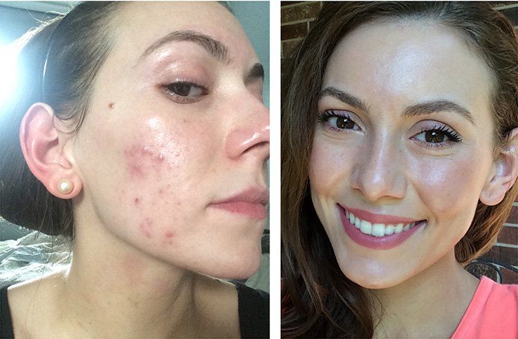 Hormonal Acne Natural Treatment Along With Causes Symptoms And Diet Plan
