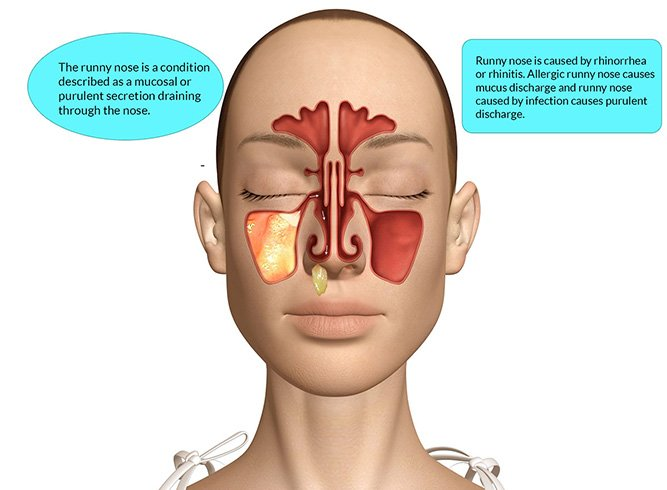 how to stop runny nose Eye Mucus causes for runny nose