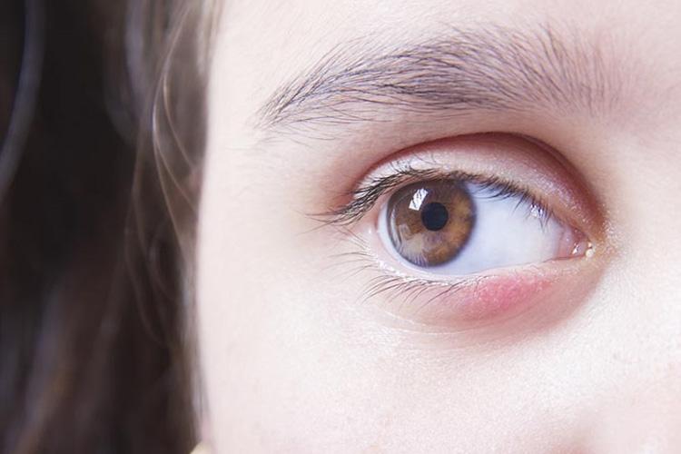 Swollen Eyelids Causes