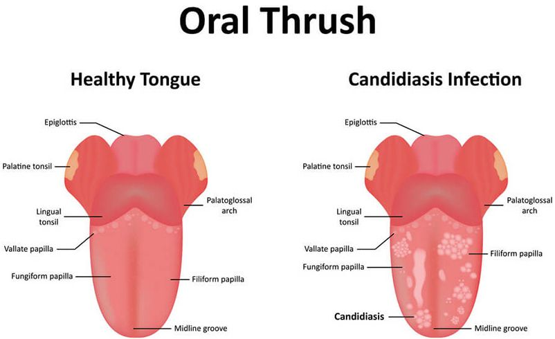 Candidiasis Infection