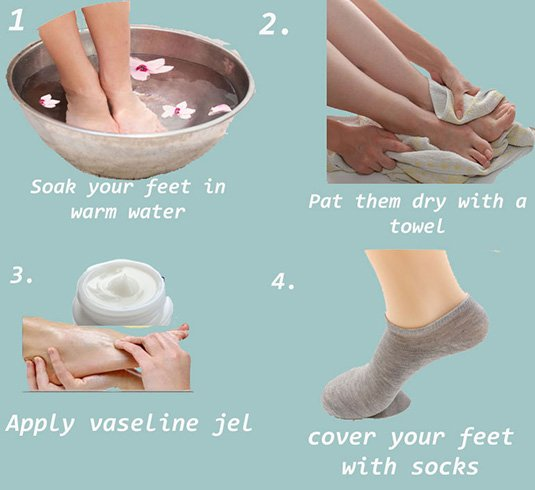 cracked heels soak