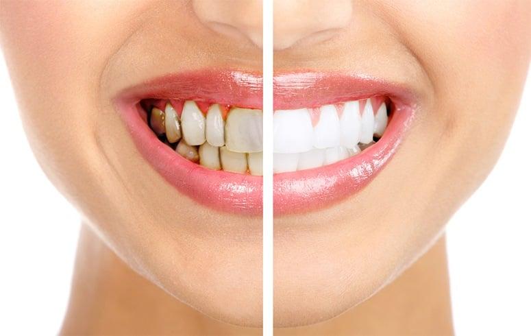 Gums Look White Around Teeth