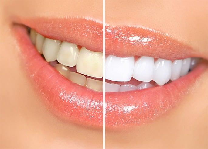 Gums Turning White Around Teeth