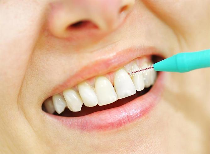 Painful White Gums Around Teeth