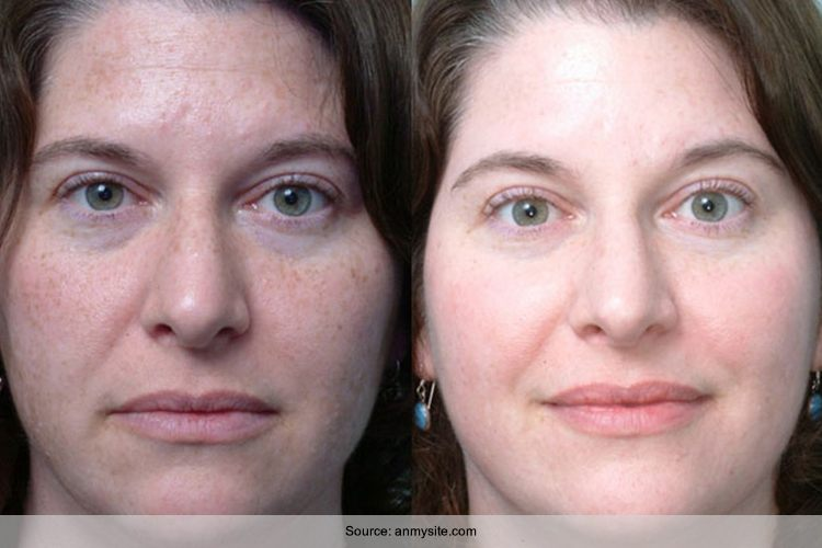 Say Bye To Your Dark Spots