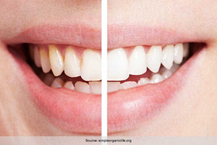 Causes Of White Gums Around Teeth