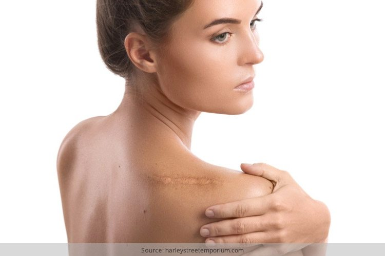 How To Get Rid Of a Keloid Scar