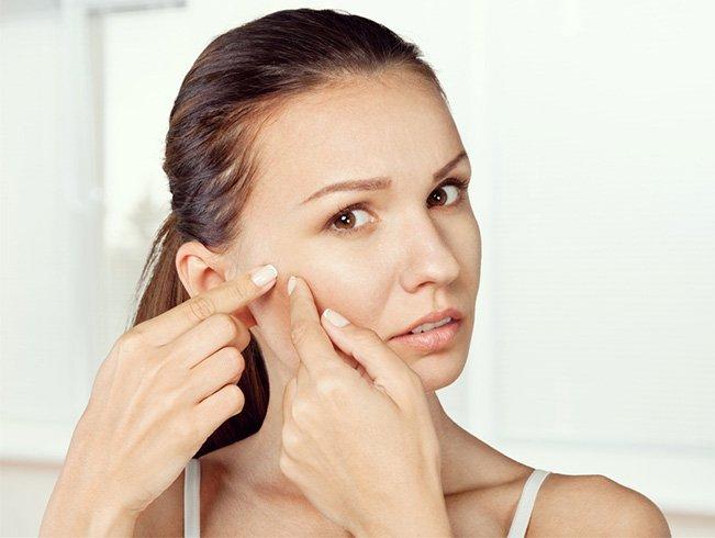 Oregano essential oil for acne