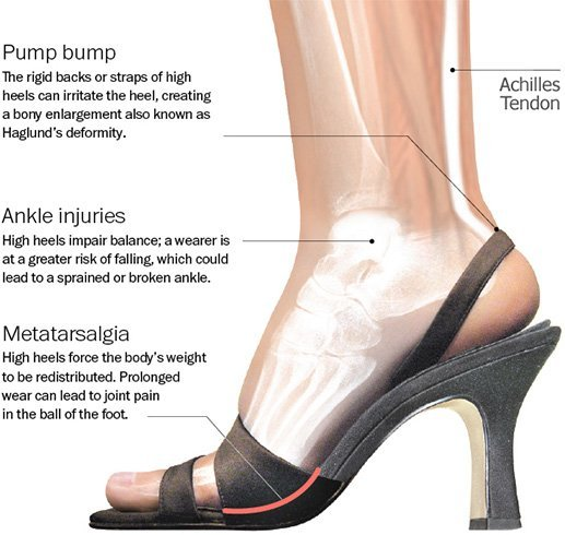 Side Effects Of High Heels