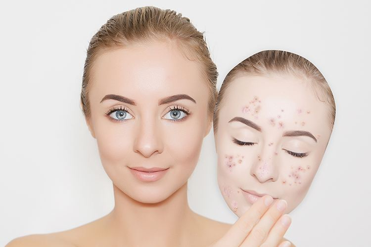 Tips To Prevent Breakouts